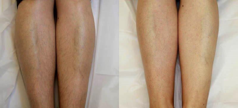 Фотоэпиляция волос на ногах. Фото до и после