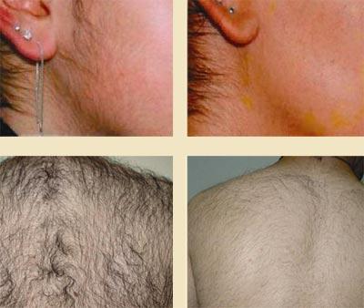 Фотоэпиляция. Перманентное удаление волос на лице и спине