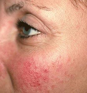 Розацеа на лице. Фото до лечения