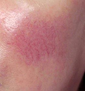 Купероз на лице. Фото до лечения