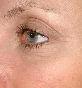 Результат аппаратного лечения розацеа на лице