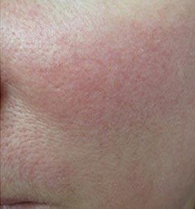 Фото после удаления купероза на лице