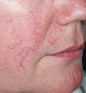 Выраженные расширенные сосуды (сосудистые звездочки) на лице