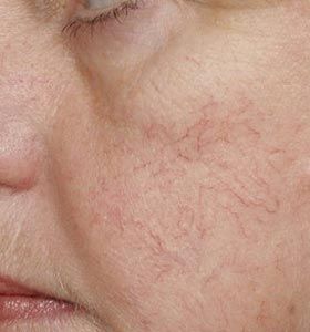 Расширенные сосуды (сосудистые звездочки) на лице. Фото до лечения