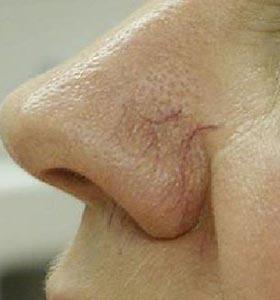 Расширенные сосуды (сосудистые звездочки) на носу. Фото до лечения