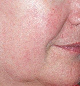 Фото после аппаратного удаления сосудистых звездочек на лице