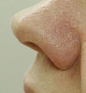 Результат удаления расширенных сосудов (сосудистых звездочек) на носу. Фото после лечения