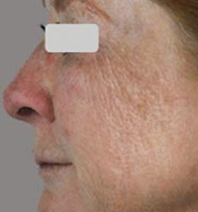 Фракционная шлифовка кожи лица. Фото до