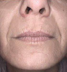 Фракционное омоложение кожи лица. Фото после