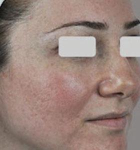 Розацеа и купероз на лице. Фото до лечения