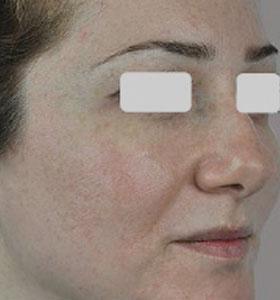 Розацеа и купероз на лице. Фото после лечения