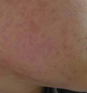 DPC лечение акне. Фото после лечения