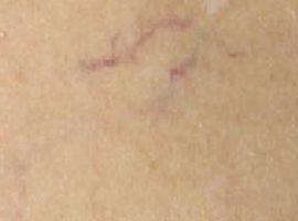 Лазерная шлифовка кожи. Фото до