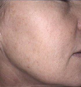 Лазерная шлифовка кожи. Фото после
