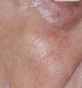 Удаление сосудистых звездочек на лице. Фото после лечения